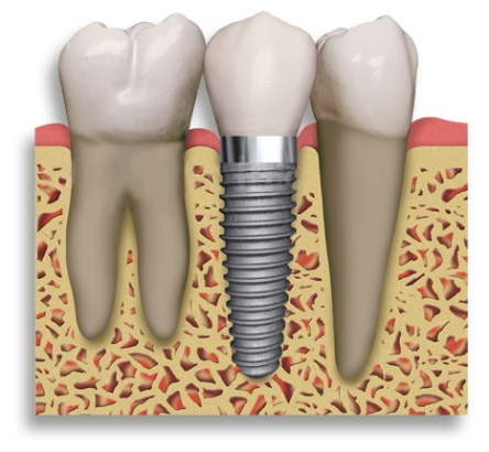 Dental_Implant_2_teeth_204153719_std