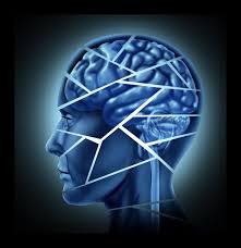 neuroplastia