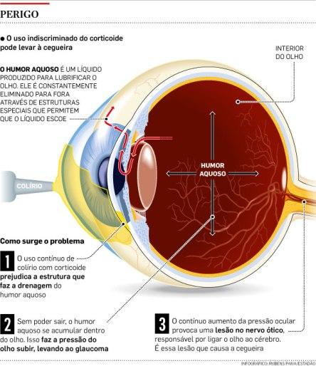 glaucoma_colirio