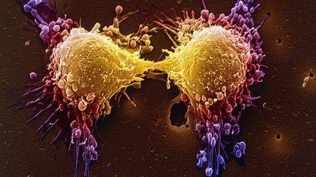 151030234433_prostate_cancer_640x360_spl_nocredit