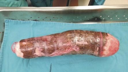 cirurgia-retirada-de-mandioca