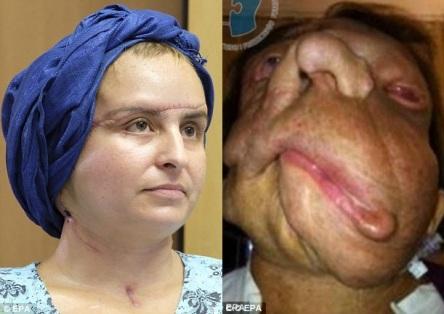 neurofibromatose-facial_03